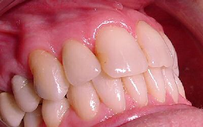 Upper lateral incisor replaced with implant supported crown